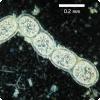 Можно ли увидеть бактерии невооружённым взглядом?