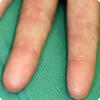 Могут ли у человека от рождения запропадаться где-то отпечатки пальцев?