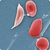 Почему гемоглобин S вместе не без; тем равно вреден, равно полезен ради выживания человека?