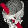 Кто и где сумел выжить и не стать инвалидом после того, как его мозг пронзил железный лом?